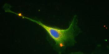 Lisztérzékenység- A coeliakiás immunreakció célpontjául szolgáló fehérjék coeliakiás sejtben.