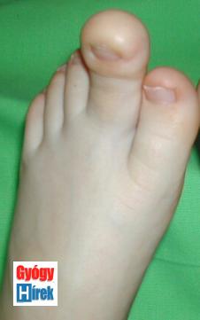 Jobb láb II. ujj gigantismusa