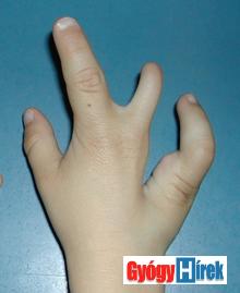hasadt kéz és ujj hiány