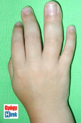 jobb kéz középső és gyűrűs ujj gigantismusa