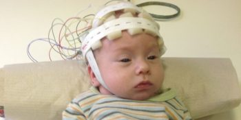 gyermekkori EEG