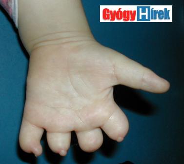 csökevényes hosszú ujjak
