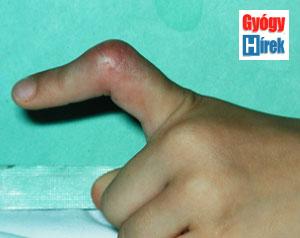 gyógyító sebek az ujjak között papillomavírus száj torok