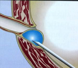 Endoszkópos reflux kezelés:
