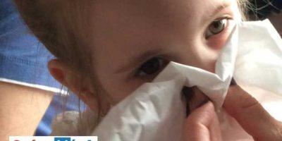 tüneti napló allergiában -nózifújás