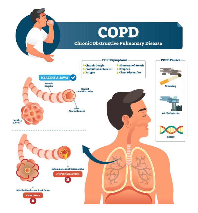 a dohányzásból származó bronchitis tünetei és kezelése