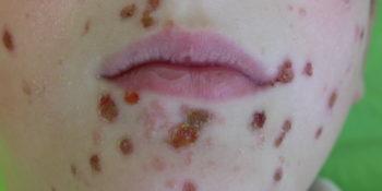 bőrfertőzés
