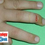 kéz ujjperc nyílt lágyrész sérülések