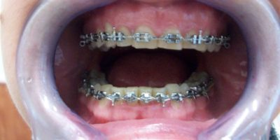 fogszabályozás állcsont-ortopédia