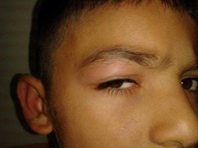 rovarcsípéses szem