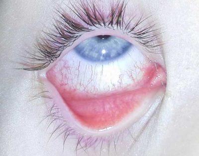 allergiás szem