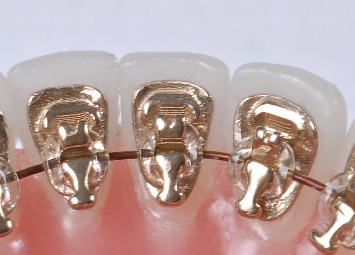 felnőttkori fogszabályozás