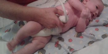 újszülöttkori hasi ultrahangvizsgálat