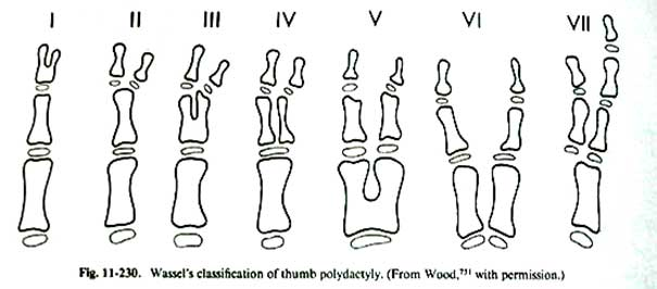 hüvelykujj kettőzöttségek formái