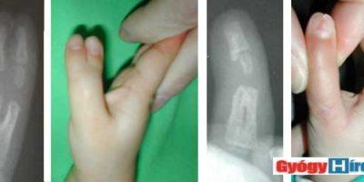 jobb kéz a,b/ műtét előtt c,d/ műtét után. Az rekonstrukció az ujj hosszanti felezésével, és a két egymás felé tekintő rész összeillesztésével történt.