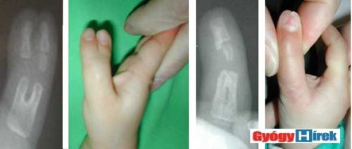 Kettőzött hüvelykujj