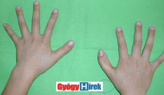 a két kéz 5 évvel később
