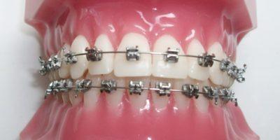 egészséges száj