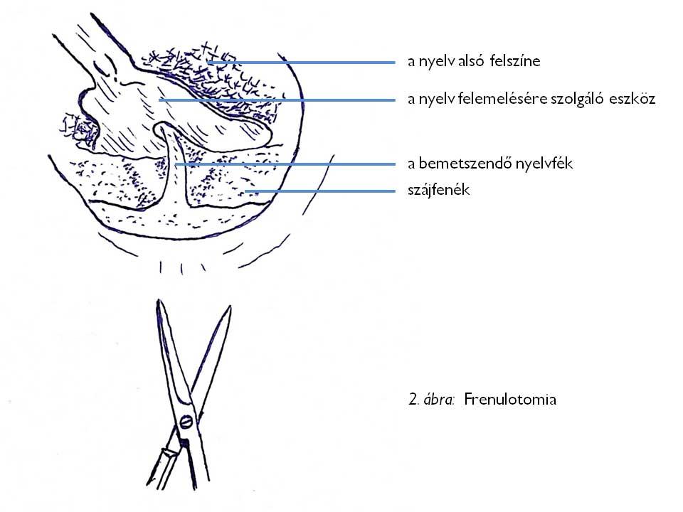 FRENULOTOMIA