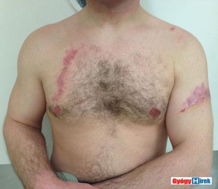 tetoválás eltávolítása után