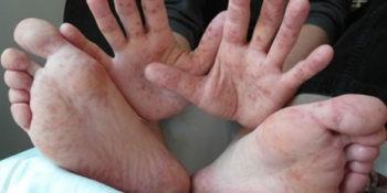 Kéz-láb-száj betegség