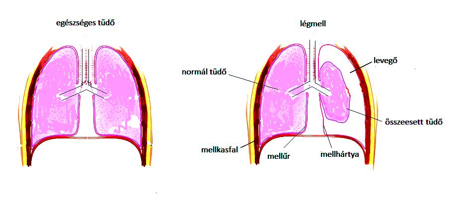 légmell MGY1