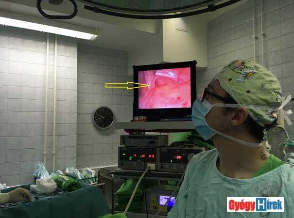lágyéksérv laparoscopos műtéte