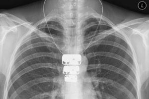 mellkasröntgen