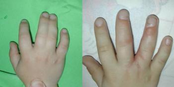 összenőtt ujj