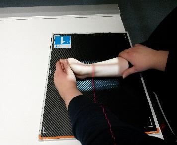 röntgenfelvétel készítése