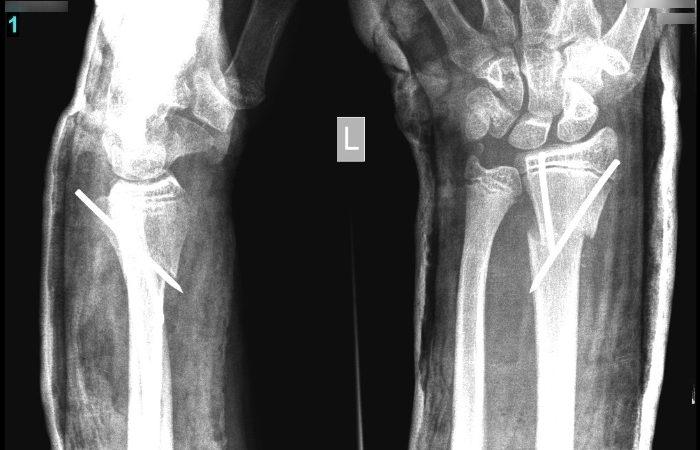 lábközépcsont törés gipszlevétel után a jobb vállízület kezelésének szinovitisz