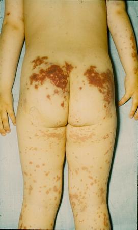 vörös foltok a térd alatt felnőttek kezelésében